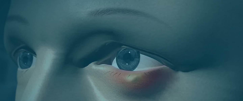 лечение ячменя на глазу фото