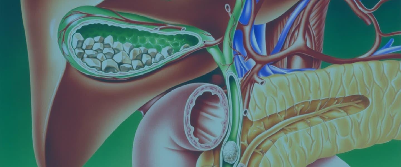Желчнокаменная болезнь изображение